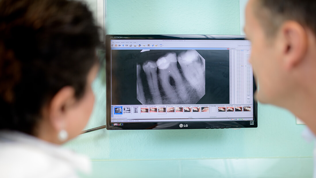 Zahnarzt Meerbusch - Nazer - Leistungen - Endodontie